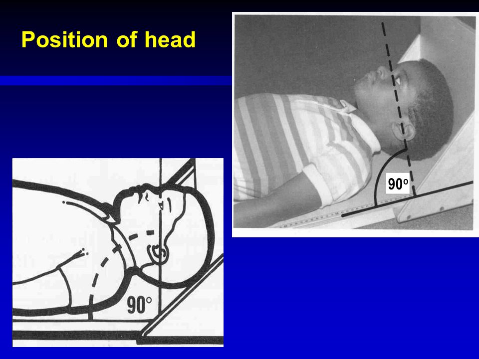 Position of head 90o