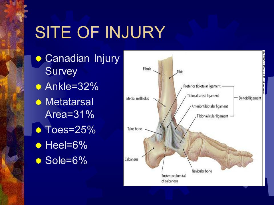 SITE OF INJURY Canadian Injury Survey Ankle=32% Metatarsal Area=31%