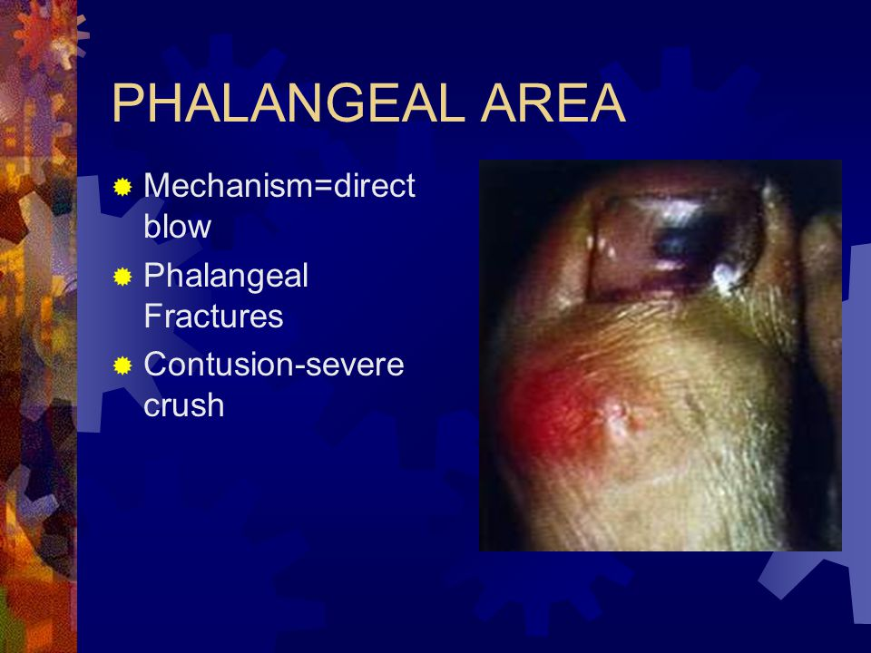 PHALANGEAL AREA Mechanism=direct blow Phalangeal Fractures