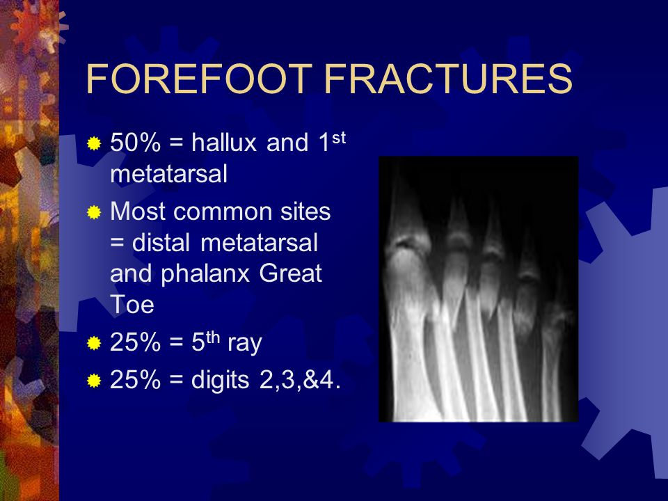 FOREFOOT FRACTURES 50% = hallux and 1st metatarsal