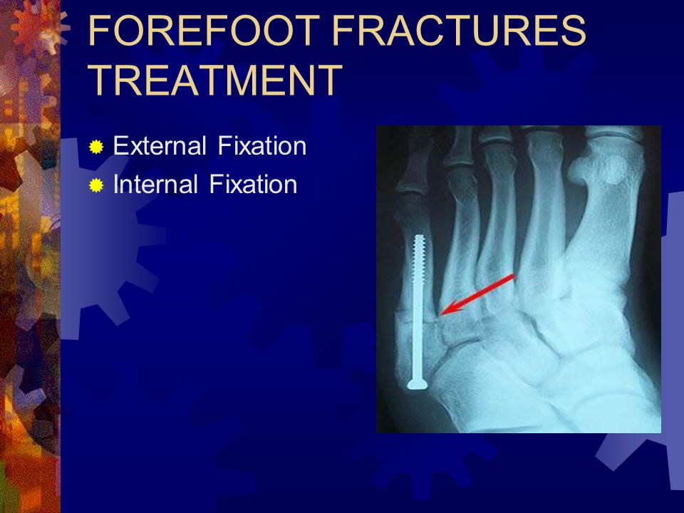 FOREFOOT FRACTURES TREATMENT
