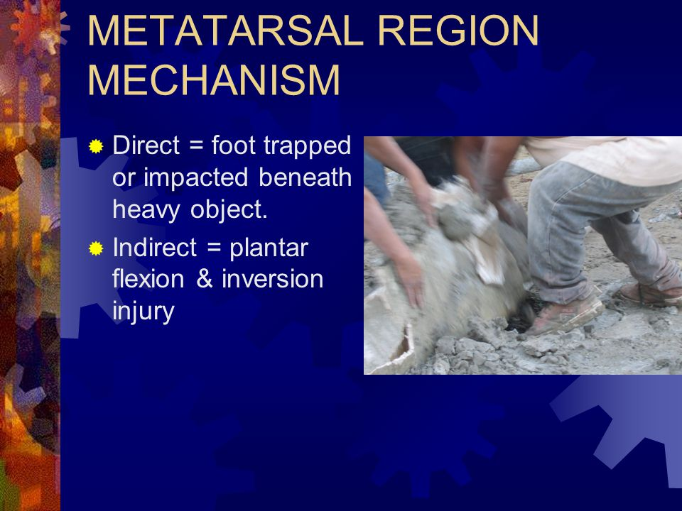METATARSAL REGION MECHANISM