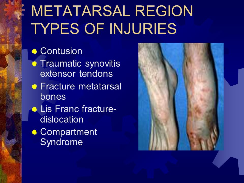 METATARSAL REGION TYPES OF INJURIES