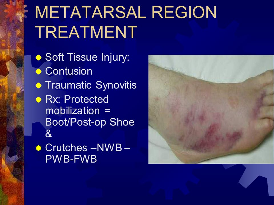 METATARSAL REGION TREATMENT