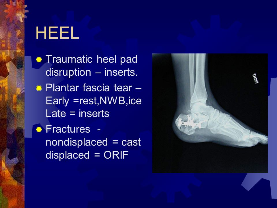 HEEL Traumatic heel pad disruption – inserts.