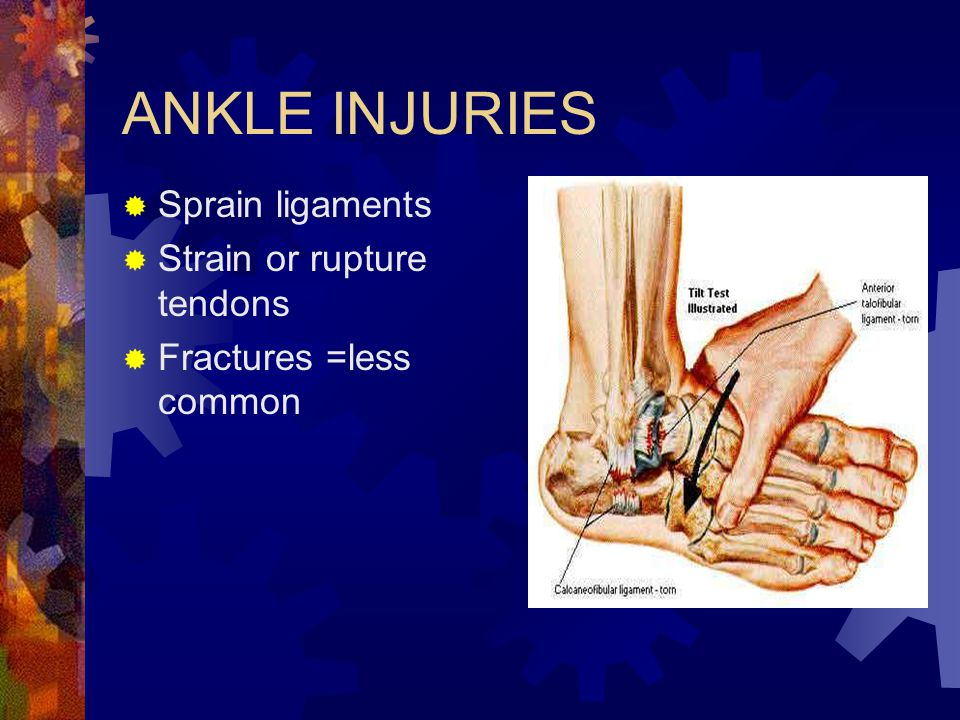 ANKLE INJURIES Sprain ligaments Strain or rupture tendons