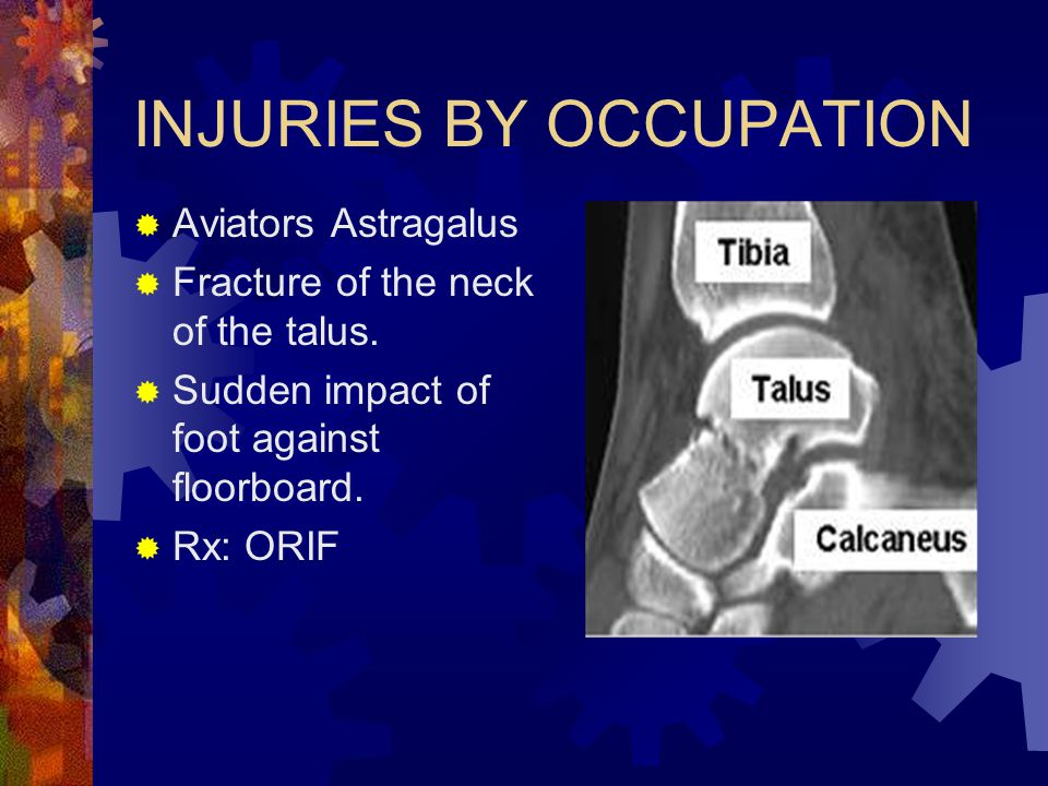 INJURIES BY OCCUPATION