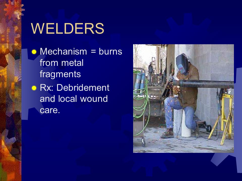 WELDERS Mechanism = burns from metal fragments