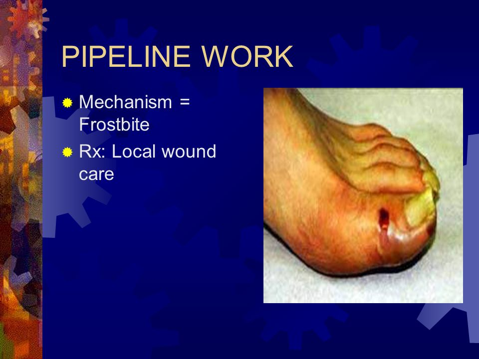 PIPELINE WORK Mechanism = Frostbite Rx: Local wound care