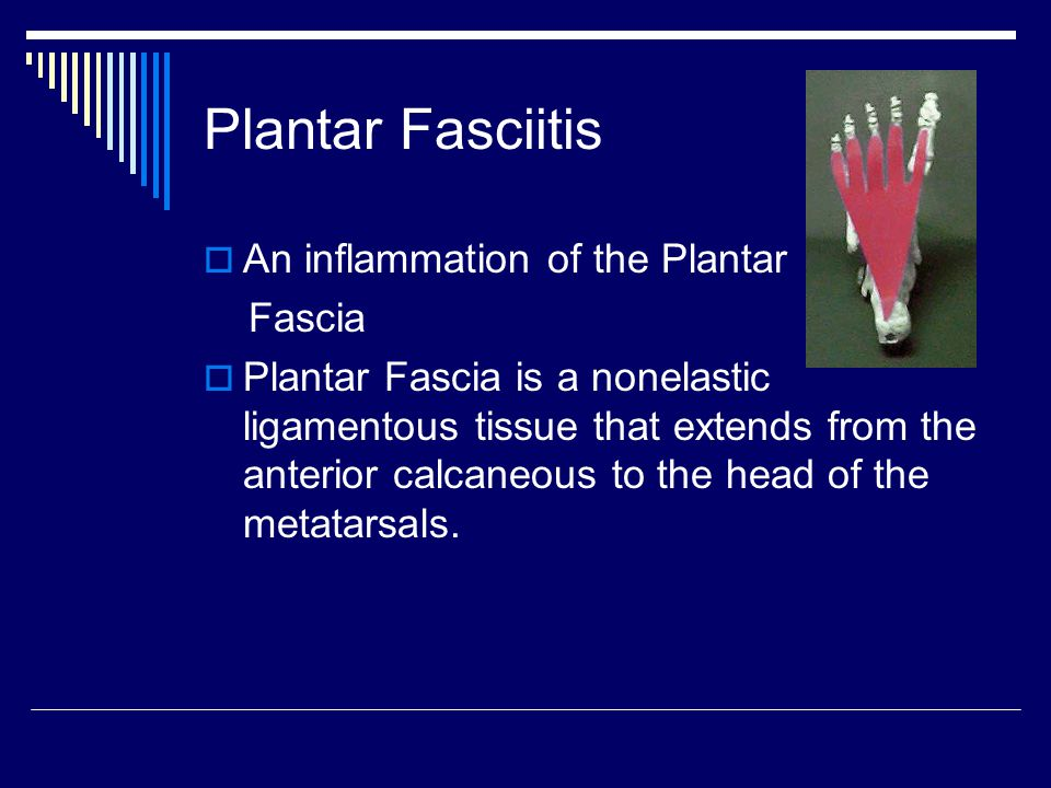 Plantar Fasciitis An inflammation of the Plantar Fascia