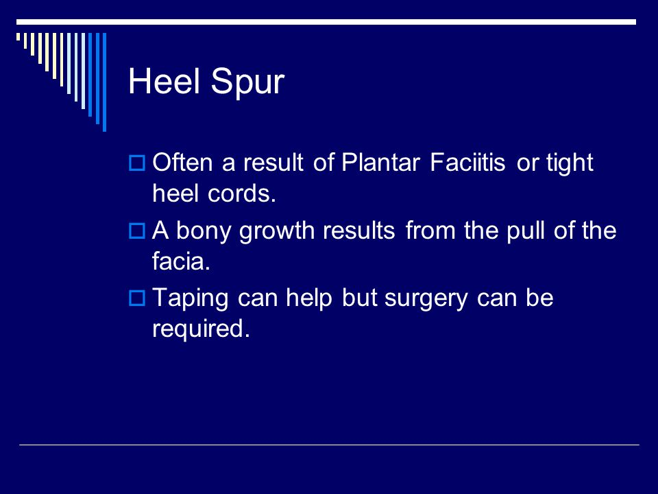 Heel Spur Often a result of Plantar Faciitis or tight heel cords.
