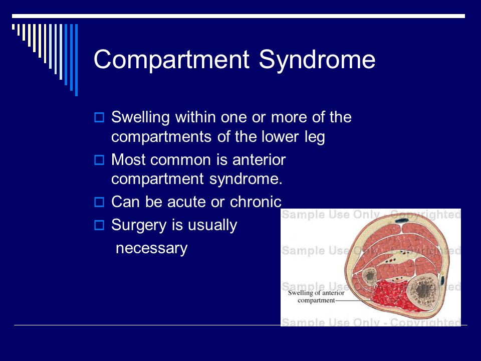 Compartment Syndrome Swelling within one or more of the compartments of the lower leg. Most common is anterior compartment syndrome.