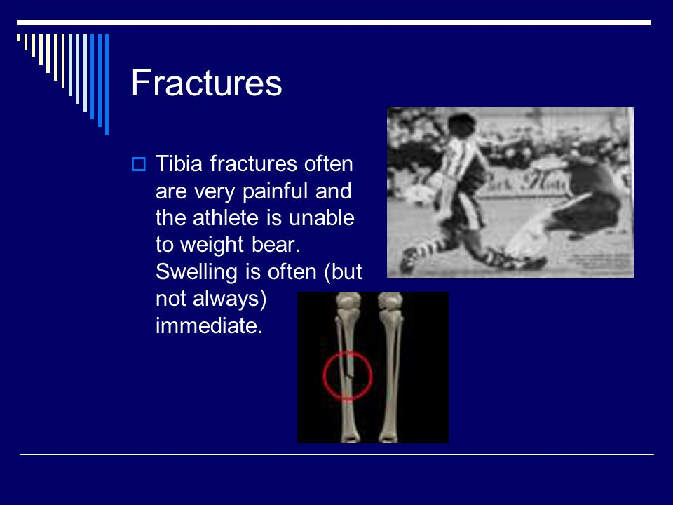 Fractures Tibia fractures often are very painful and the athlete is unable to weight bear.