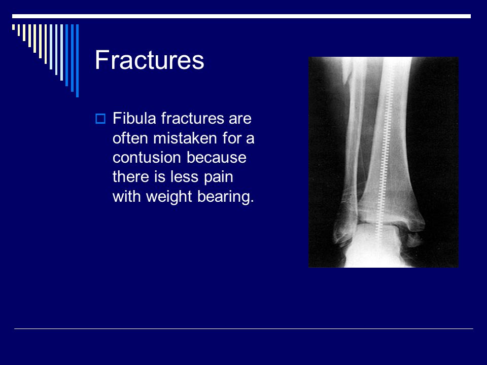 Fractures Fibula fractures are often mistaken for a contusion because there is less pain with weight bearing.