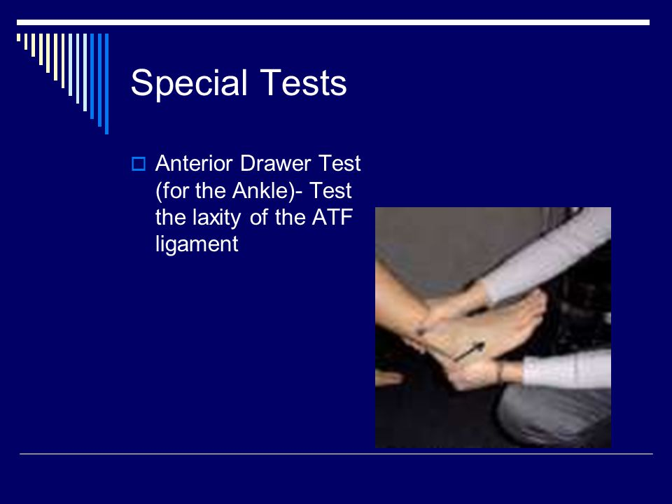 Special Tests Anterior Drawer Test (for the Ankle)- Test the laxity of the ATF ligament