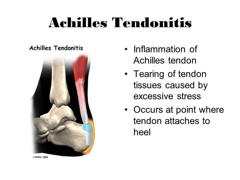 Achilles Tendonitis Inflammation of Achilles tendon