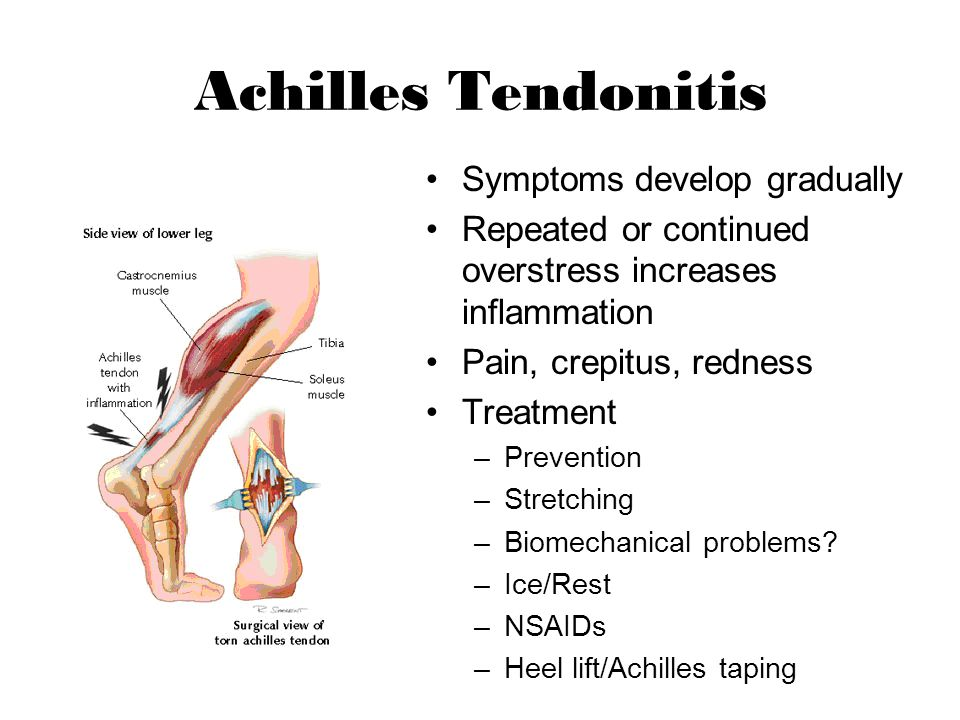 Achilles Tendonitis Symptoms develop gradually
