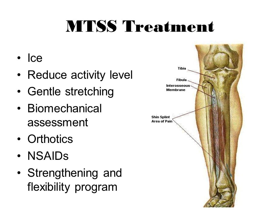 MTSS Treatment Ice Reduce activity level Gentle stretching