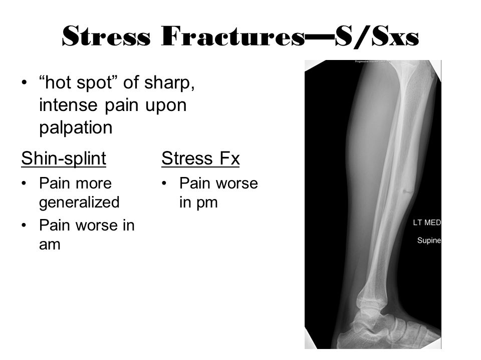 Stress Fractures—S/Sxs
