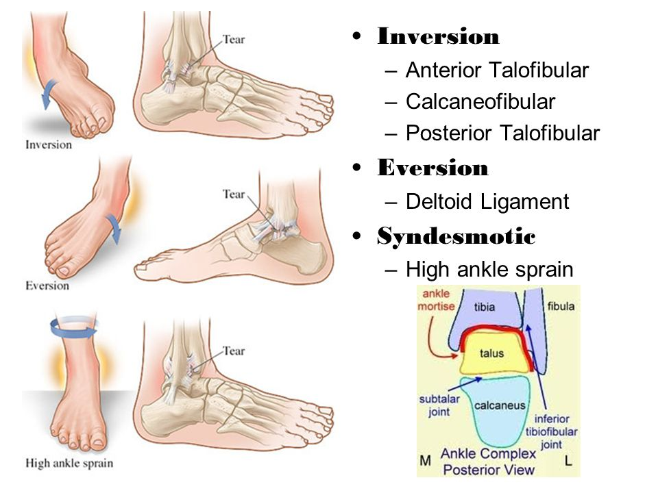 Inversion Eversion Syndesmotic Anterior Talofibular Calcaneofibular