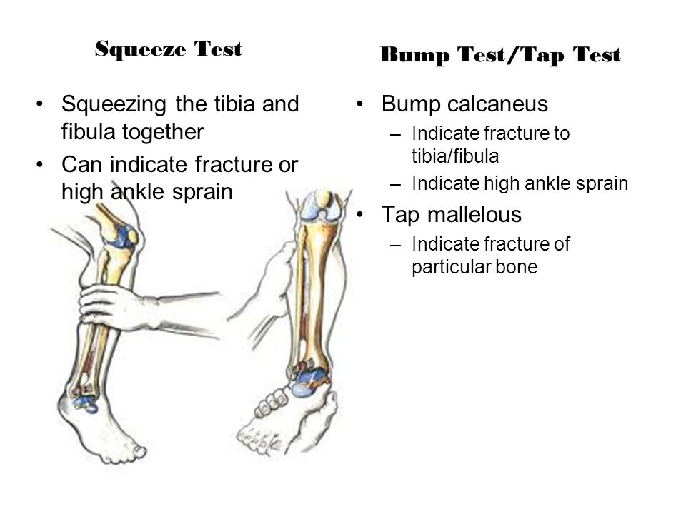 Squeeze Test Bump Test/Tap Test