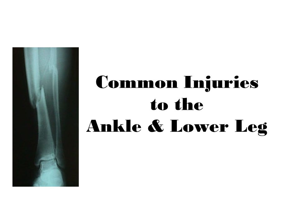 Common Injuries to the Ankle & Lower Leg