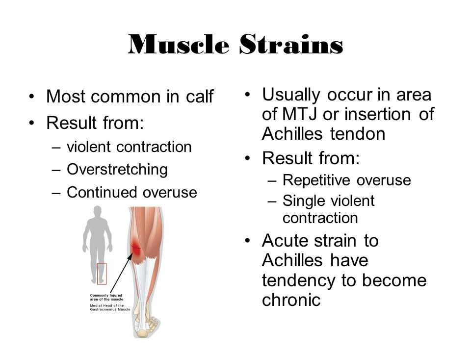 Muscle Strains Most common in calf Result from: