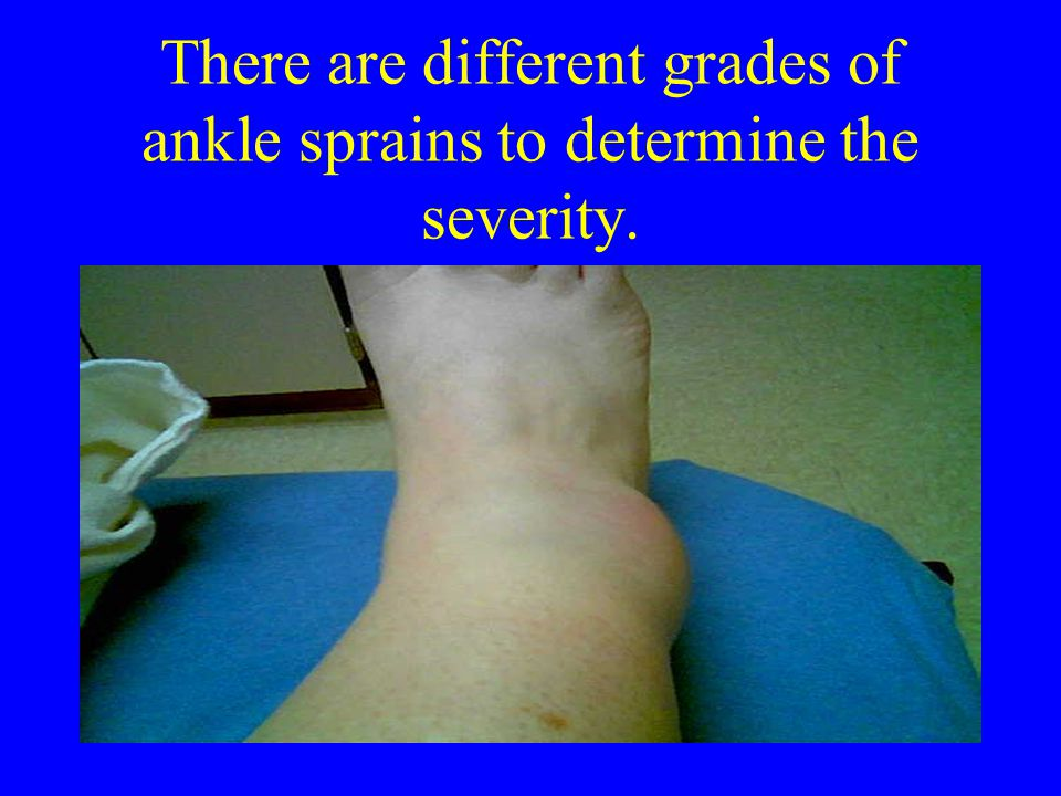 There are different grades of ankle sprains to determine the severity.