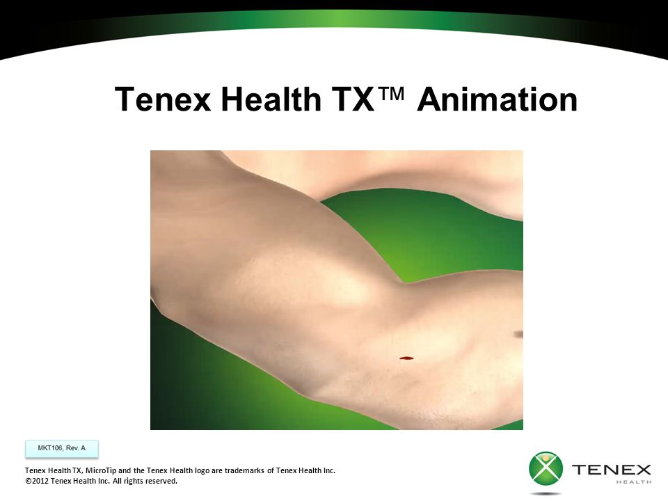 Tenex Health TX™ Animation