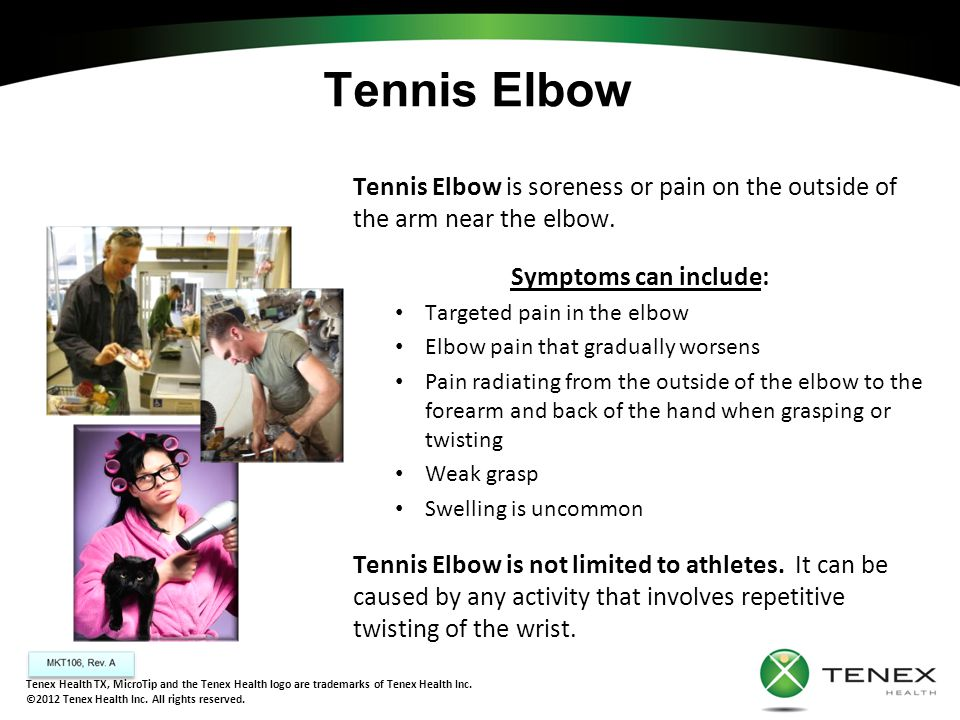 Tennis Elbow Tennis Elbow is soreness or pain on the outside of the arm near the elbow. Symptoms can include: