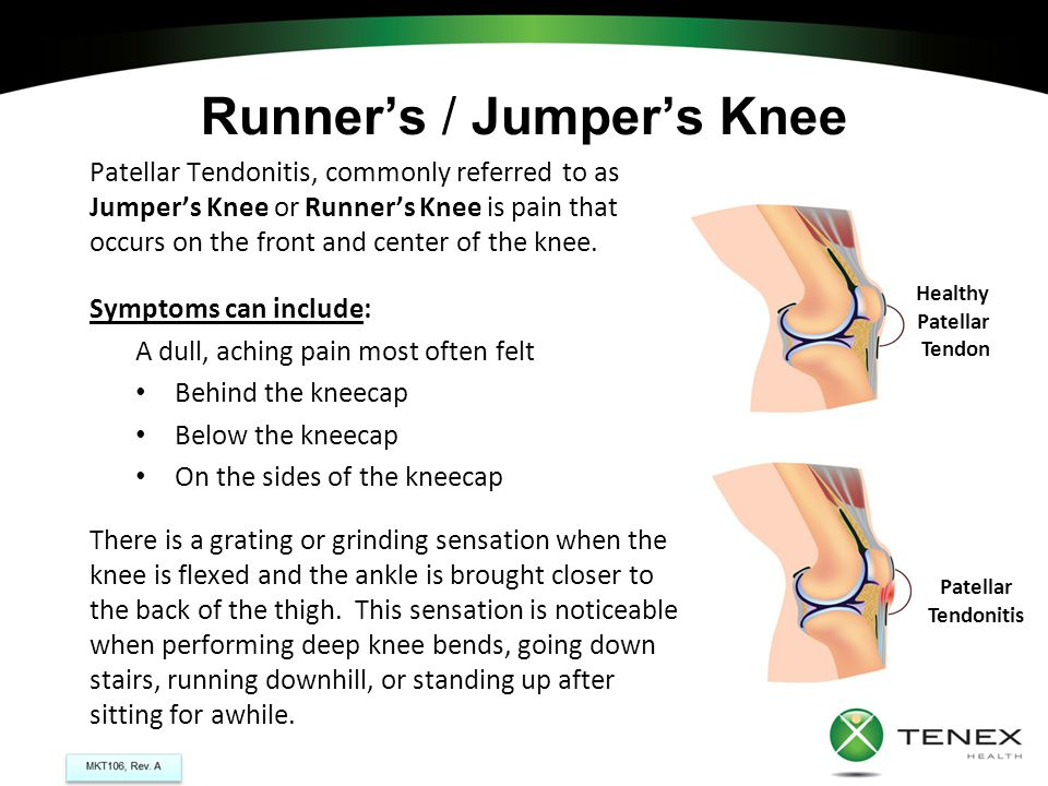 Runner's / Jumper's Knee