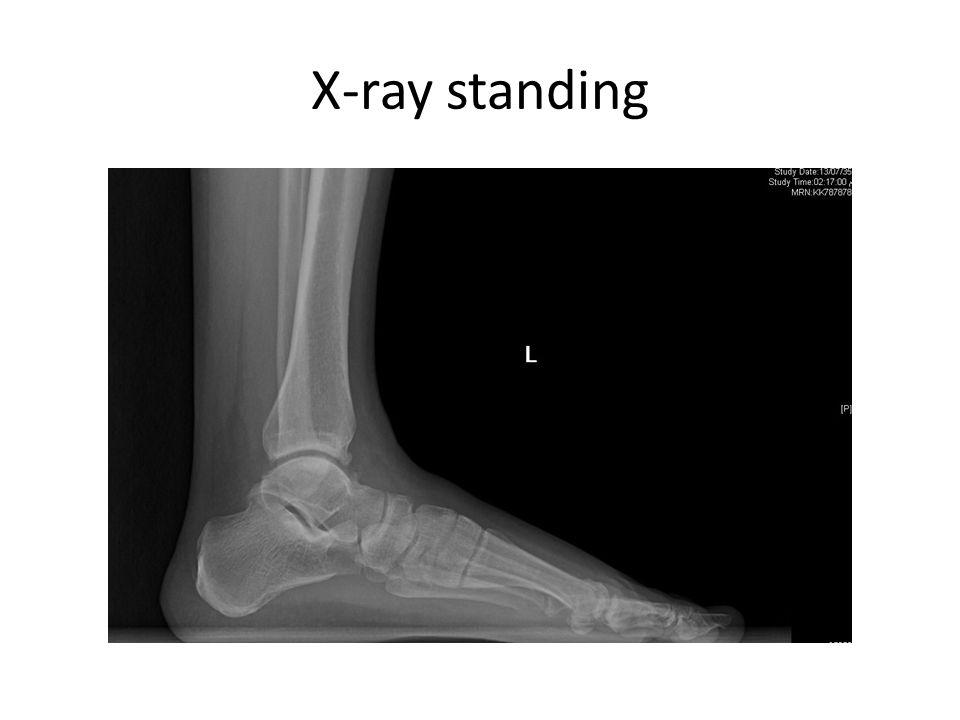 X-ray standing