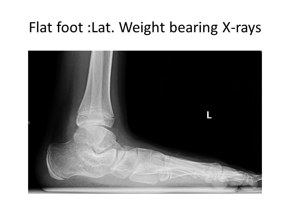 Flat foot :Lat. Weight bearing X-rays