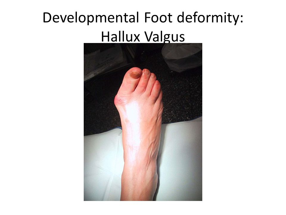 Developmental Foot deformity: Hallux Valgus