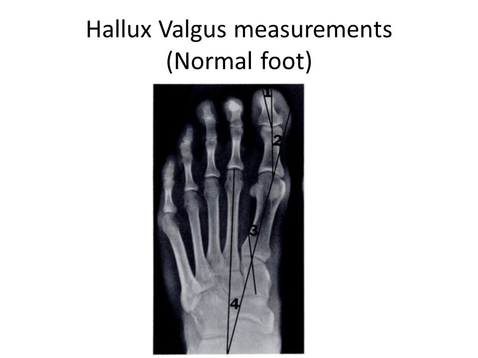 Hallux Valgus measurements (Normal foot)