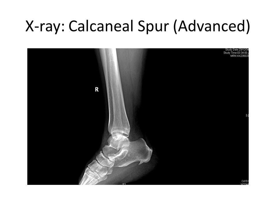 X-ray: Calcaneal Spur (Advanced)