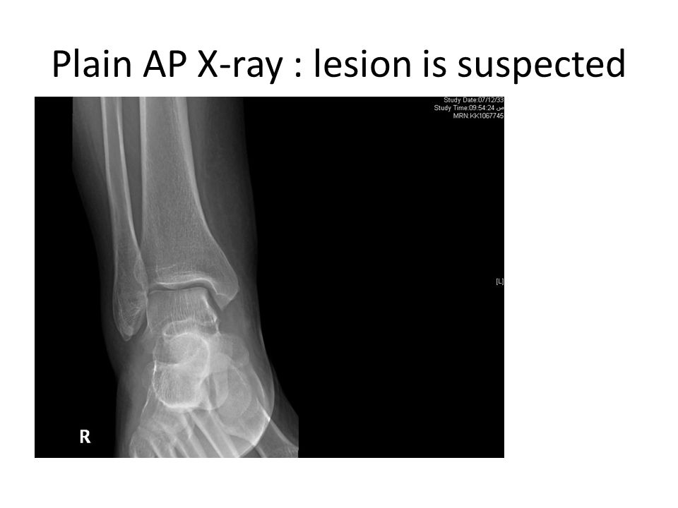 Plain AP X-ray : lesion is suspected