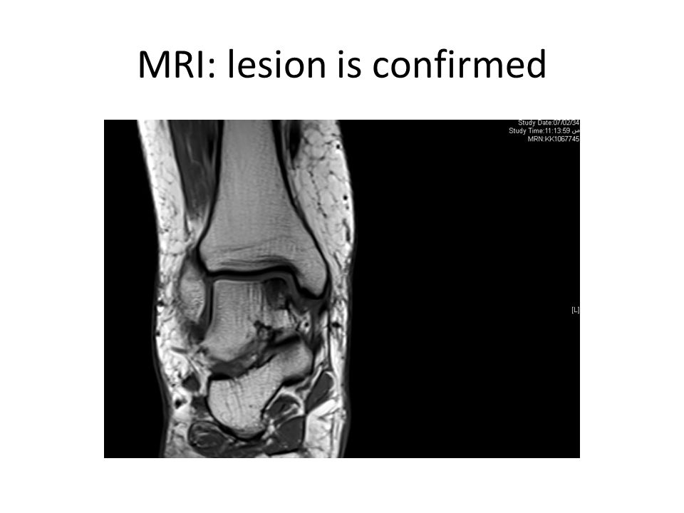 MRI: lesion is confirmed