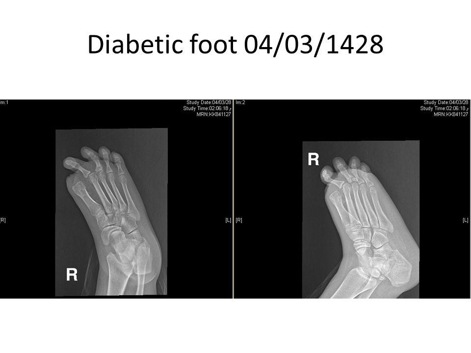Diabetic foot 04/03/1428