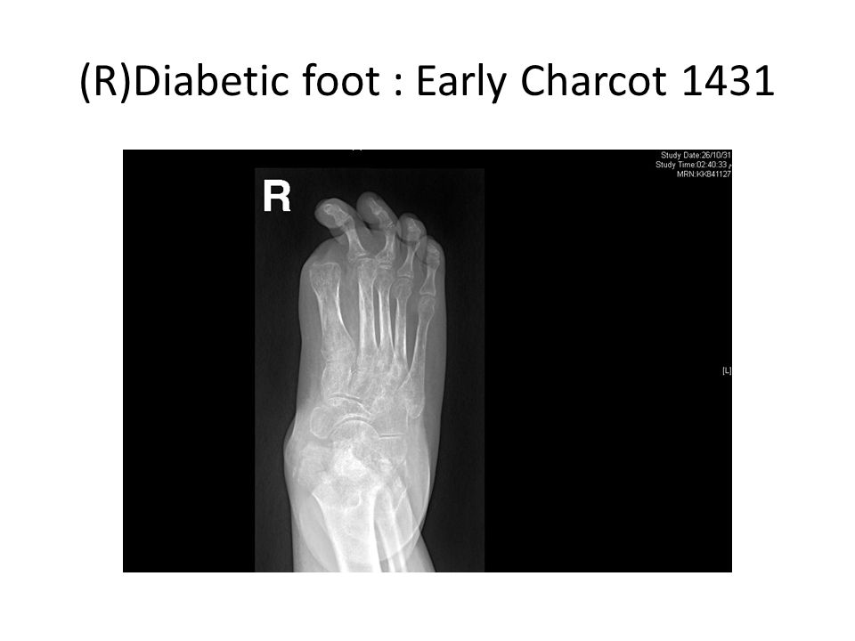 (R)Diabetic foot : Early Charcot 1431