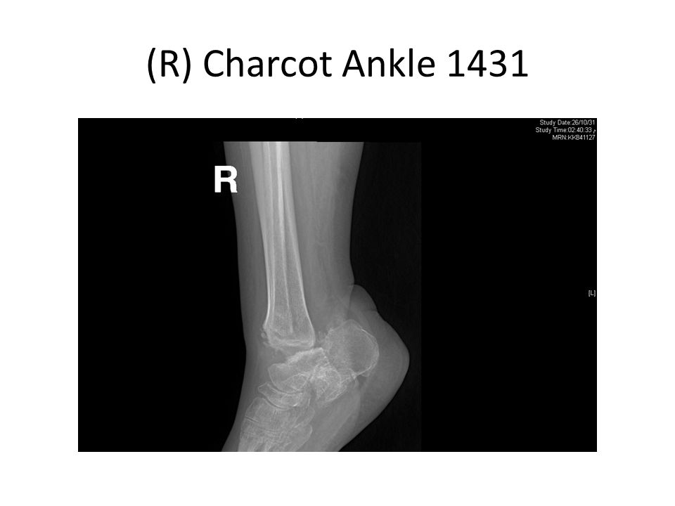 (R) Charcot Ankle 1431