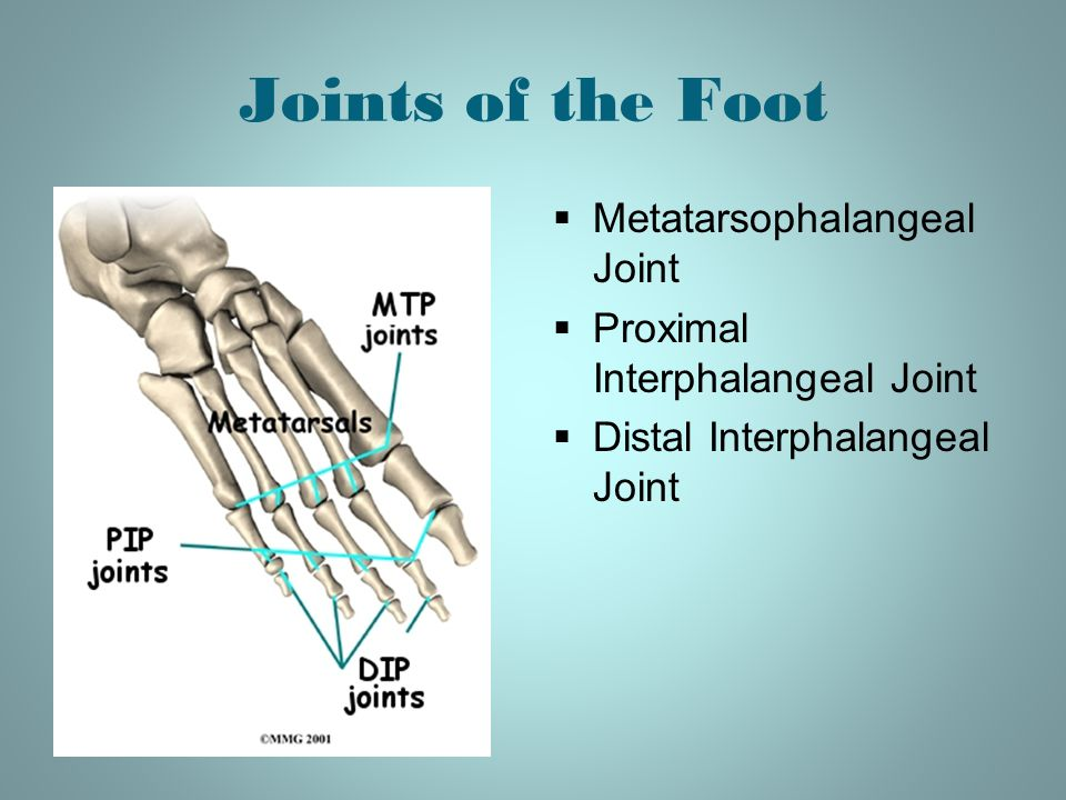 Joints of the Foot Metatarsophalangeal Joint