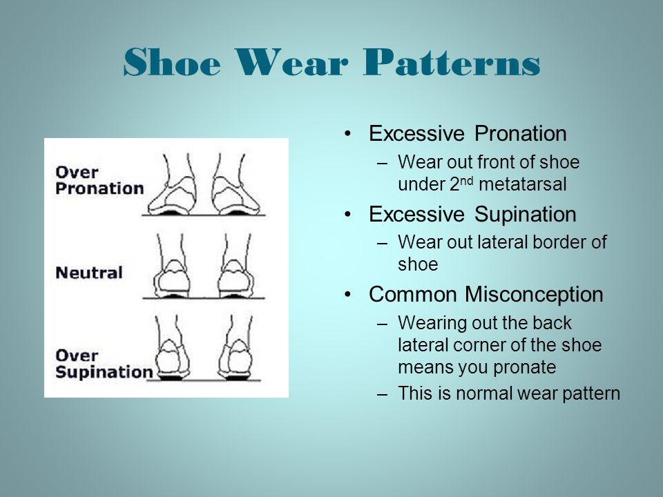 Shoe Wear Patterns Excessive Pronation Excessive Supination