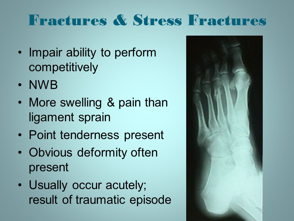 Fractures & Stress Fractures