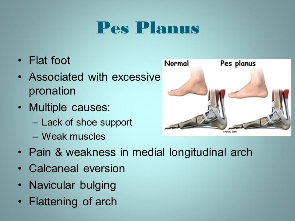 Pes Planus Flat foot Associated with excessive pronation