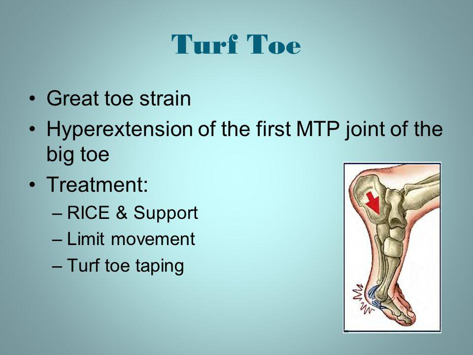 Turf Toe Great toe strain