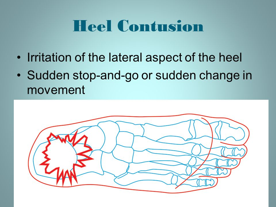 Heel Contusion Irritation of the lateral aspect of the heel