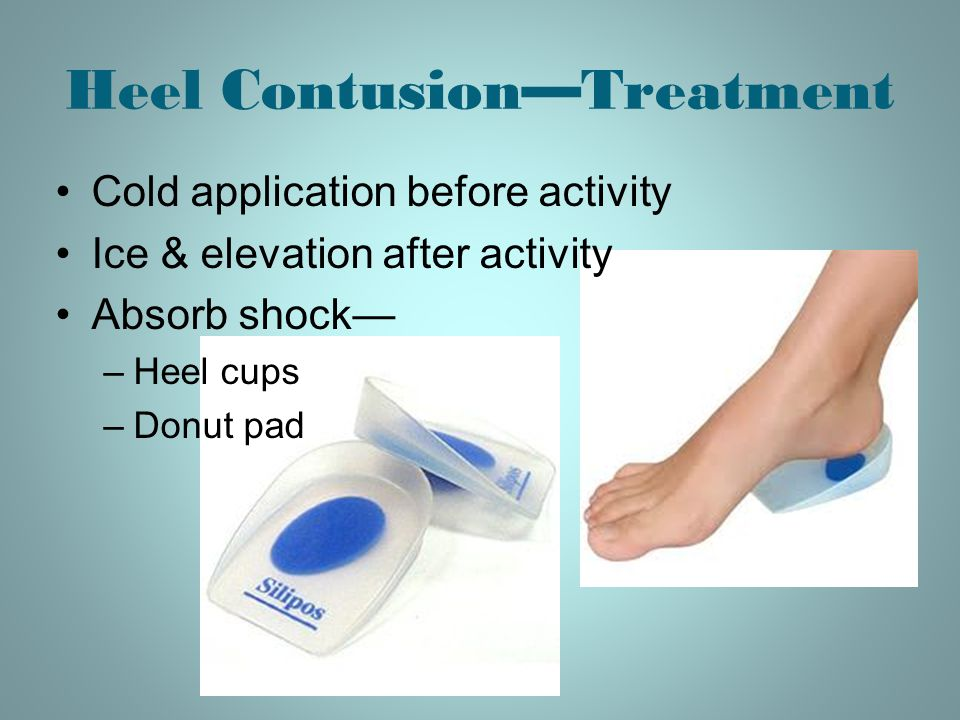 Heel Contusion—Treatment