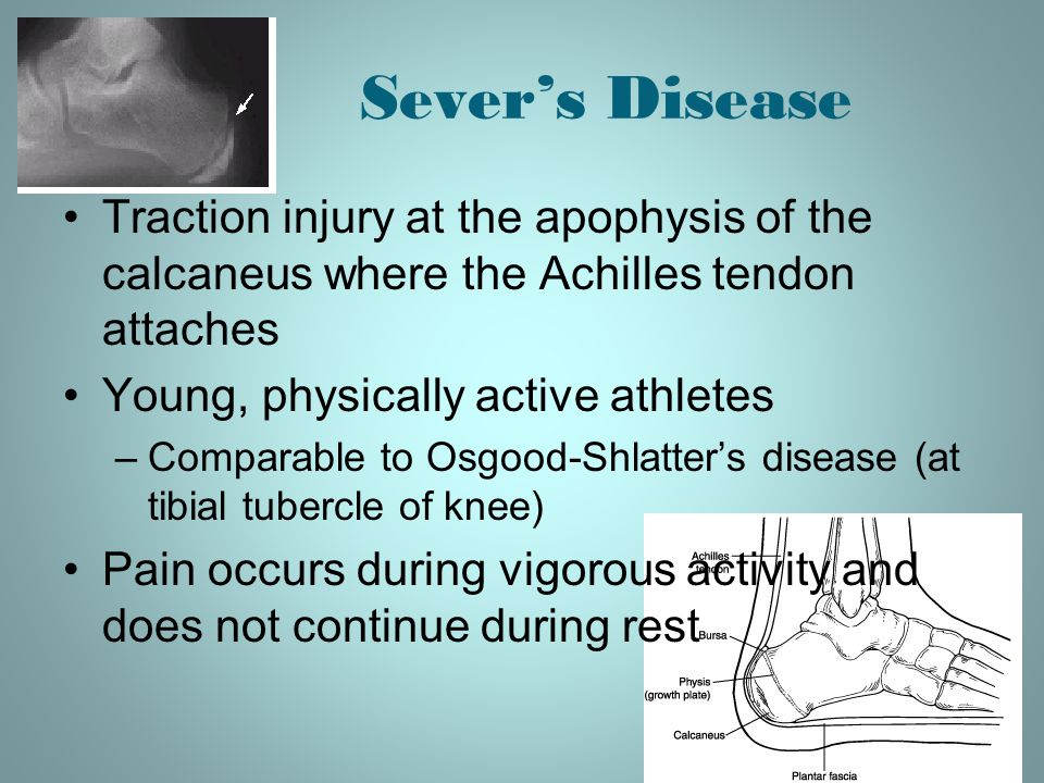 Sever's Disease Traction injury at the apophysis of the calcaneus where the Achilles tendon attaches.