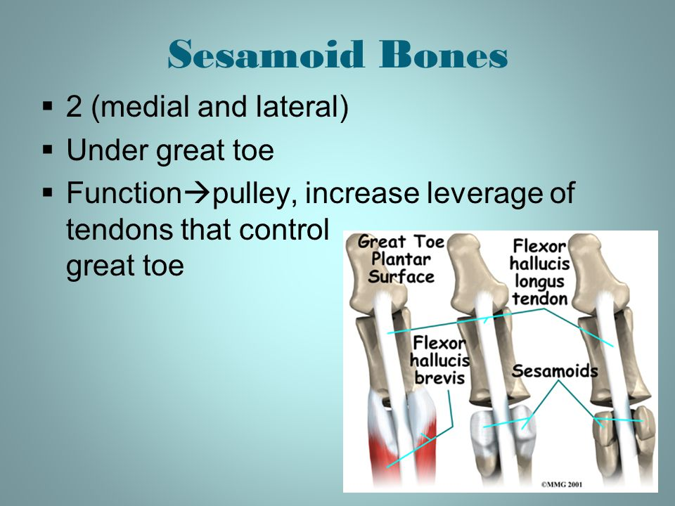 Sesamoid Bones 2 (medial and lateral) Under great toe